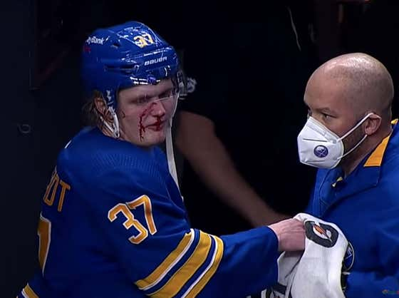Casey Mittelstadt Gets His Face Cut Wide Open From A High Stick, Sabres Announcer Tells Him To Suck It Up And Keep Playing