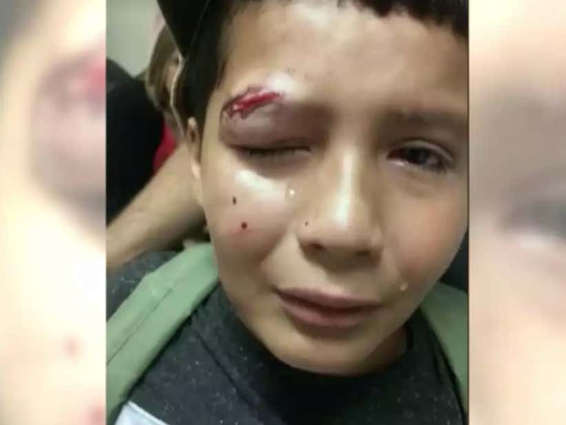 10-Year-Old Winds Up In The ER Because He Refused To Fight