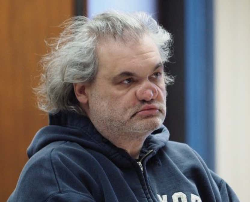 Artie Lange's Nose Is A Disaster After