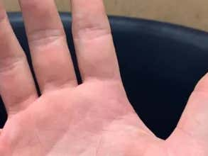 We Have Our First Gruesome 16 Inch Softball Injury Of The Season (NSFL)