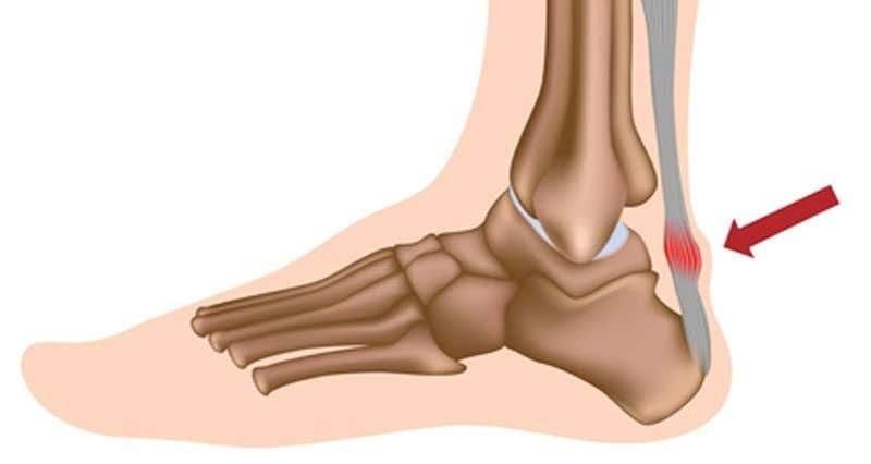 achilles-tendonitis800-800x426