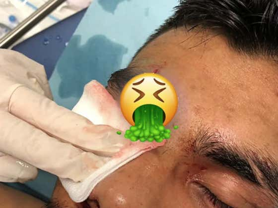 NSFW CUT - SOMEBODY GOT THEIR EYEBROW PUNCHED OFF ALREADY AT UFC URUGUAY